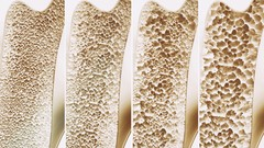 Natural Osteoporosis and Menopause