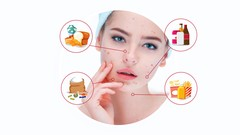 The truth about Acne: Beauty restoration journey
