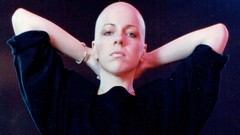 Haarausfall und Alopecia: Hilfe zur Selbsthilfe