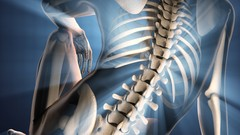 Exposing Spinal Pain Imposters: Differential Diagnosis Spine