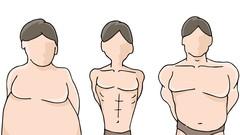 Ayurveda - Prakriti - Dosha Body Type Analysis And Advice