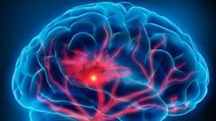 Why Stroke Matters: Neurology for Non-Neurologists