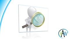 FS Audit - Accounting Procedures & Internal Controls