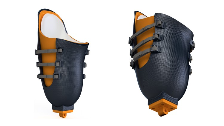 Product Design: Prosthetic Design using Fusion 360